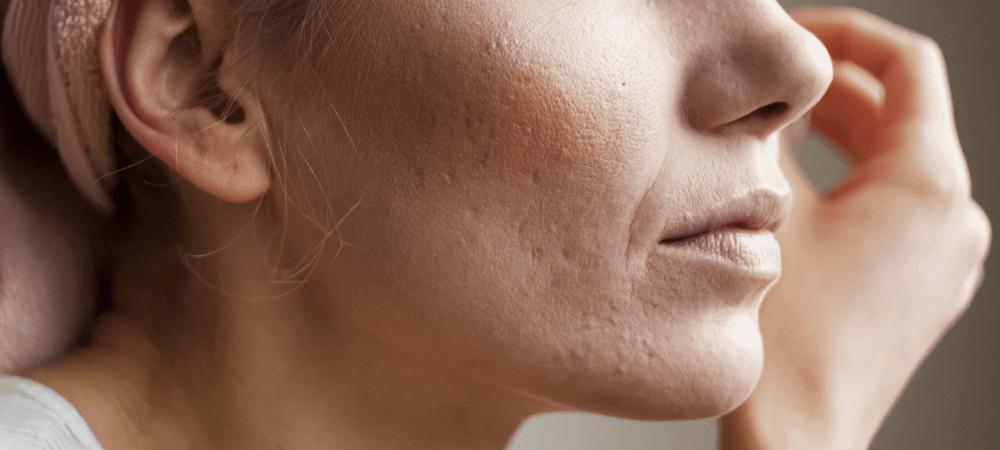 benefícios da vitamina c para o rosto