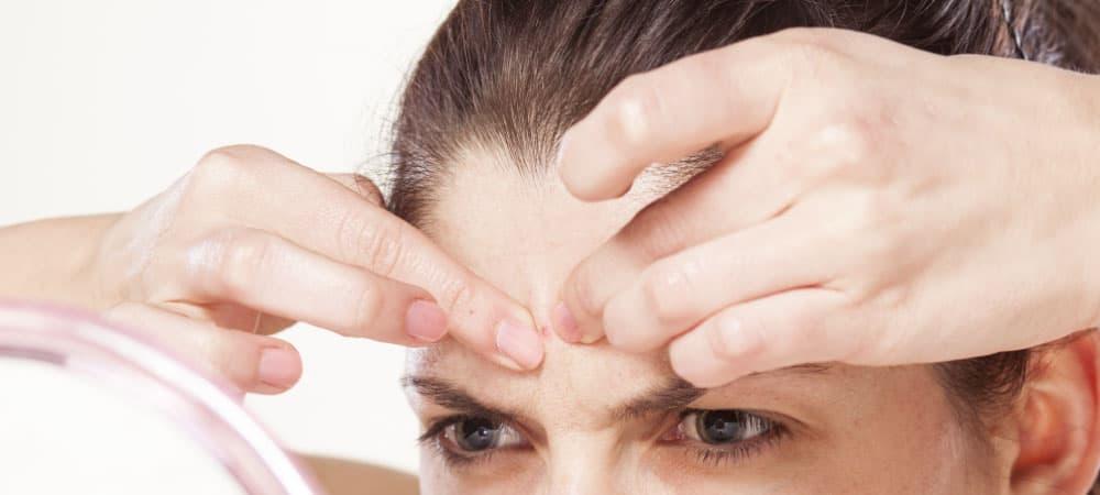 vitamina c acne