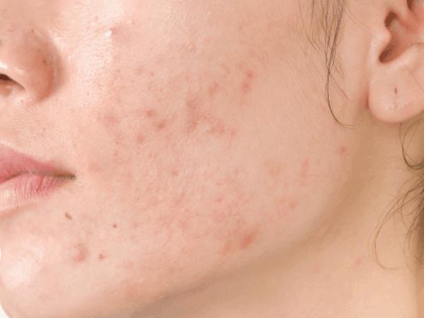 manchas-acne